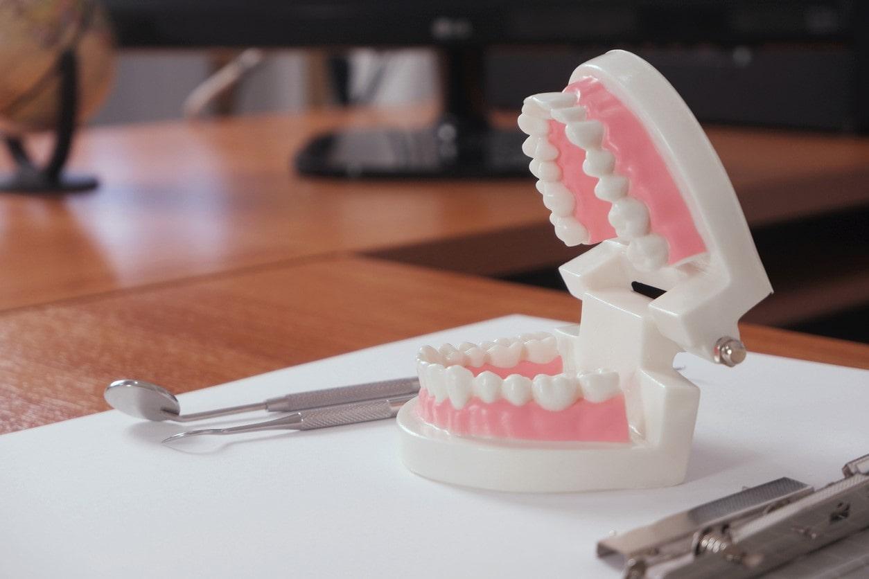 model teeth and tools on dentist desk